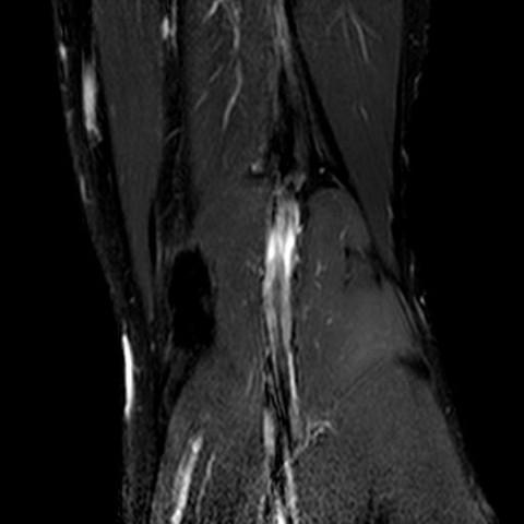 Knie8 - (Gesundheit und Medizin, Bilder, Knie)