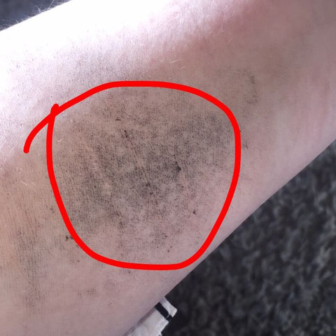 1 Bild der Narben am Unterarm  - (Arzt, Bilder, Narben)
