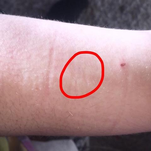 2 Bild der Narben am Oberarm  - (Arzt, Bilder, Narben)
