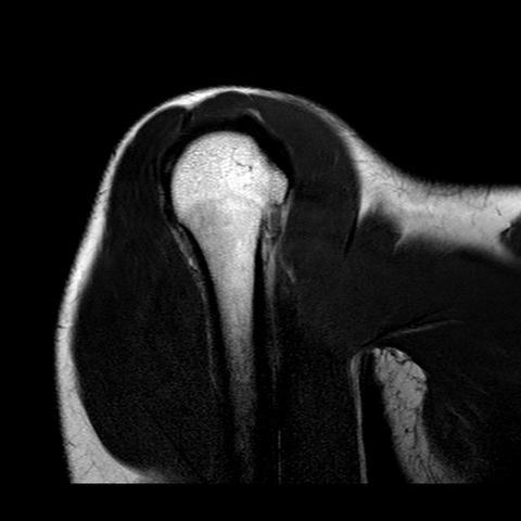 rechte Schulter - (Medizin, Schulter, mrt-diagnose)