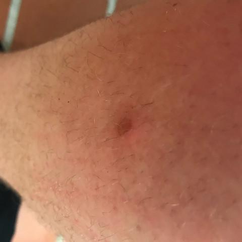 Mücke - (Gesundheit und Medizin, Entzündung, Mücken)