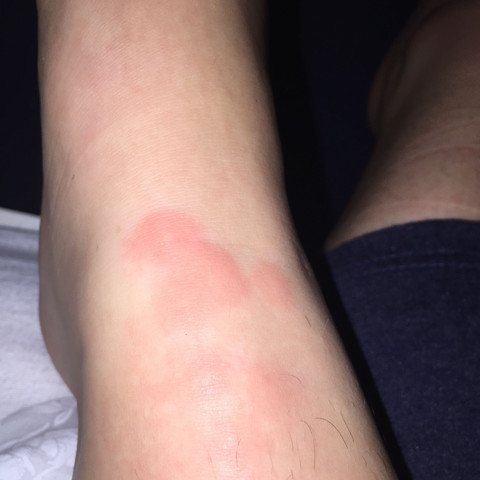 Mückenartige Bissebettwanze Arzt Schmerzen Krankheit