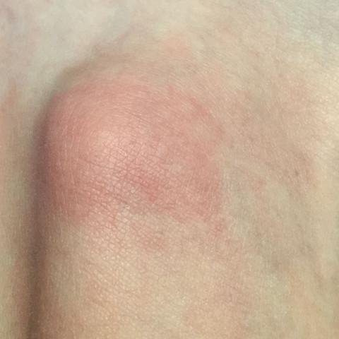 Ist dieser Mückenstich schon schlimm aufgekratzt? - (Insekten, Stich, mueckenstich)