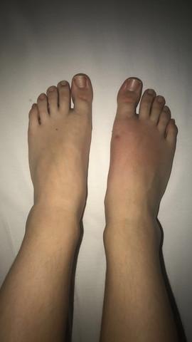 Nur Ein Fuß Geschwollen