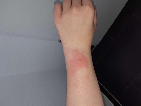 Mückenstich, sollte ich das untersuchen lassen
