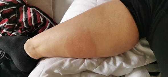 Mückenstich, was soll ich tun? was hilft?