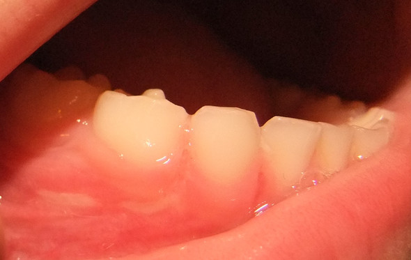 Unterkiefer Milchzähne - (Zahnarzt, Milchzähne, Zahnwechsel)