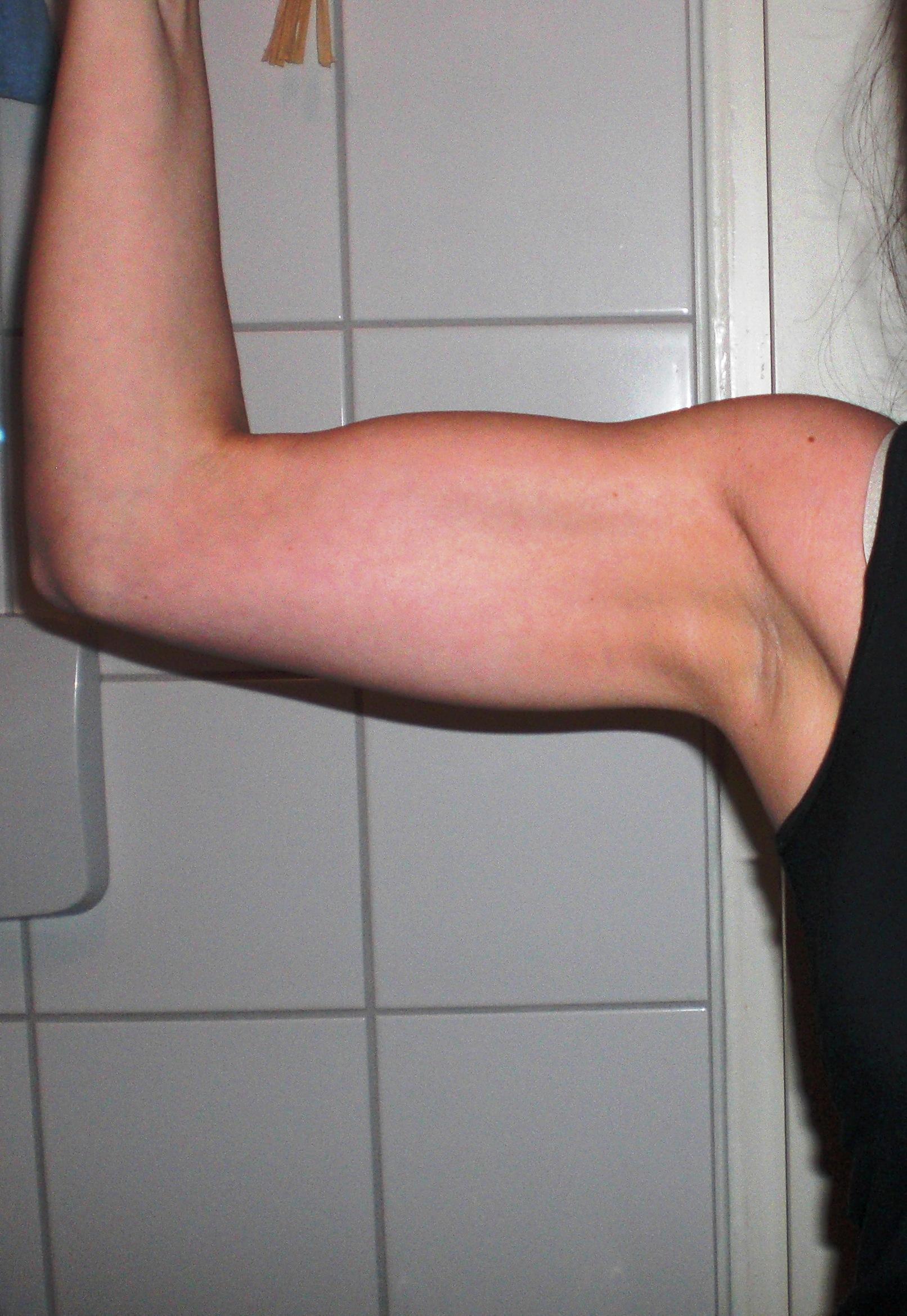 Muskelaufbau - Arme - Frau (Gesundheit, Sport, Training)