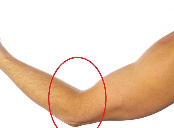 Muskelaufbau, Arm Muskulatur in einem Bereich ziemlich \