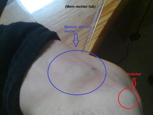 Knuubel am Fuß 1 - (Medizin, Arzt, Muskeln)