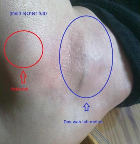 Knubbel am Fuß 2 - (Medizin, Arzt, Muskeln)