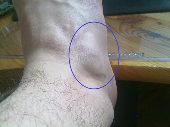 Knubbel am Fuß 3 - (Medizin, Arzt, Muskeln)