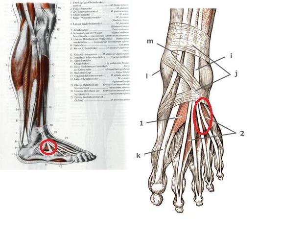Muskel/Knubbel am Fuß (Medizin, Arzt, Muskeln)
