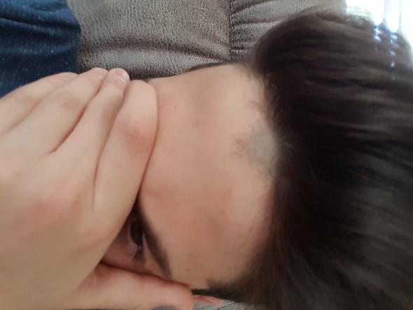 Die Haare da:( - (Haare, rasieren, Stirn)