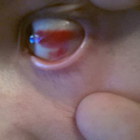 Auge - (Gesundheit, Arzt, Augen)