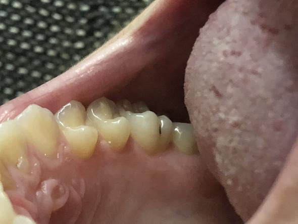 - (Gesundheit und Medizin, Zahnarztbehandlung)