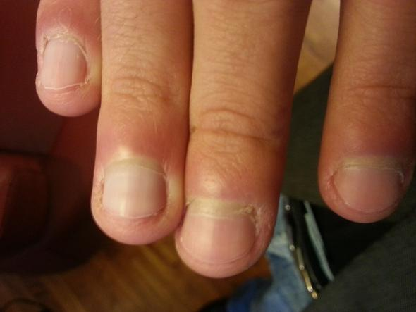 Finger - (müdigkeit, Herpes, Bakterien)