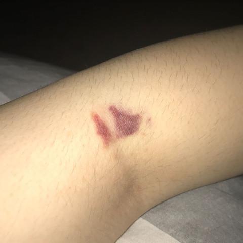 Blauer fleck blutabnahme Nach Blutabnahme