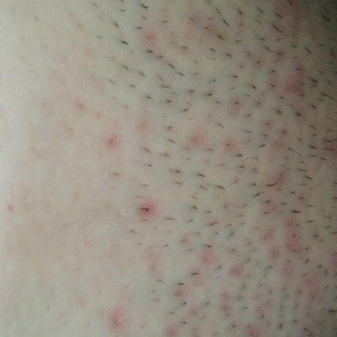 Rote punkte im intimbereich nach dem rasieren
