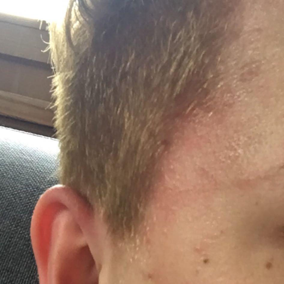 Haare gefarbt flecken im gesicht