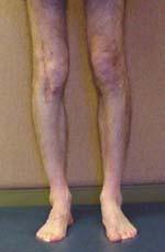 Beispiel 1 - (Knochen, Oberschenkel, Orthopädie)