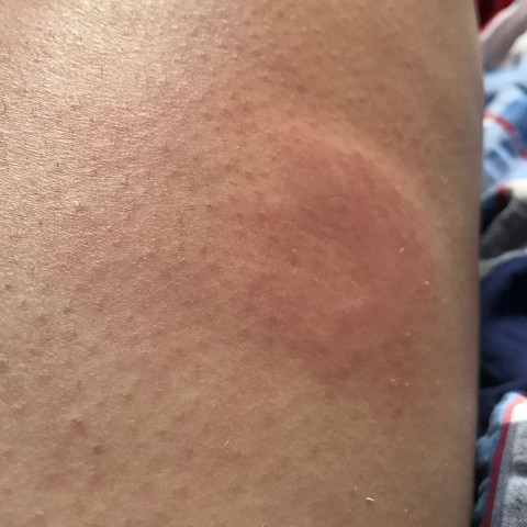 Insektenstich  - (Schwellung, Stich, Mückenstiche)