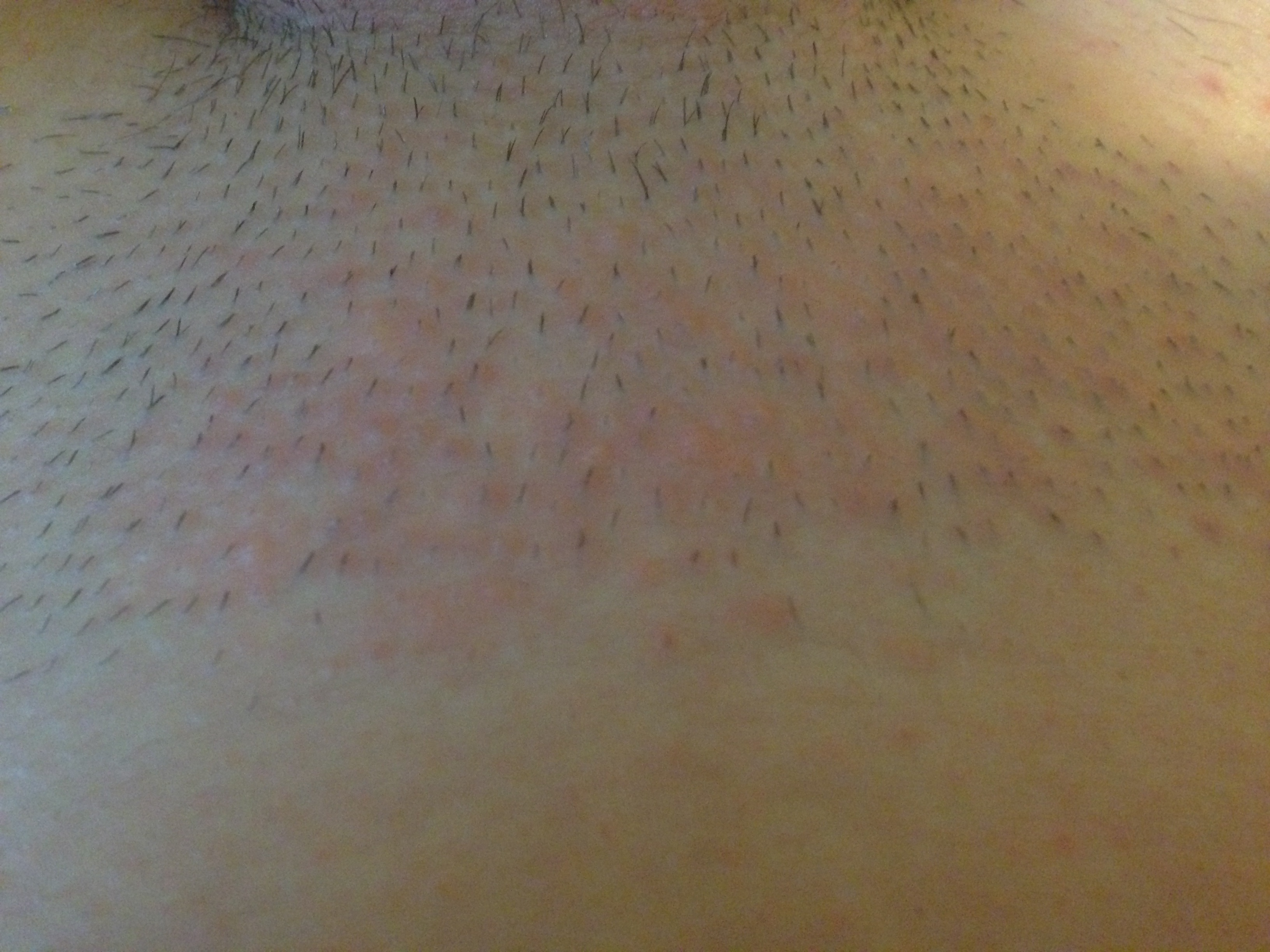 Venushügel Rasiert
