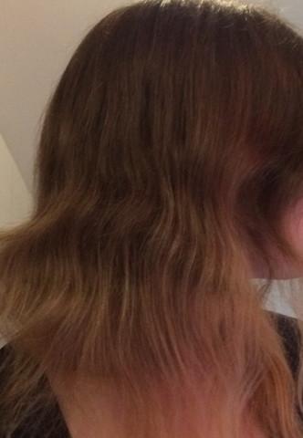 Blondierung kopfhaut nach tut weh Wunden durch