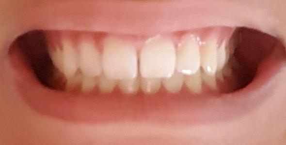Zähne - (Gesundheit, Gesundheit und Medizin, Zähne)