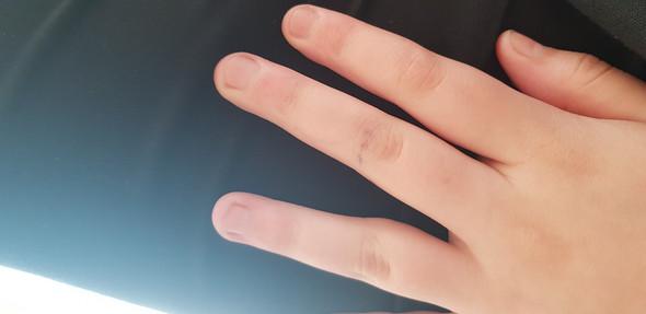 Nägelkauen abgesetzt wie schnell wachsen die Nägel jetzt?
