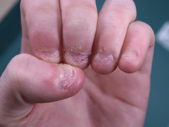Wie kann ich damit aufhören, Nägel zu kauen? (Pflege