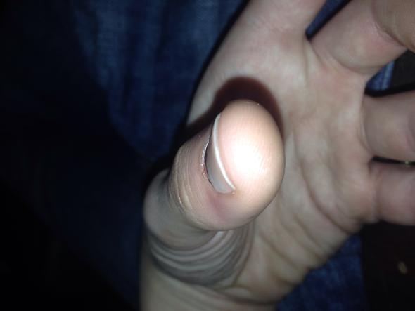 Hier ist beim genauen gucken der hintere Nagel weiter oben als der vordere - (Gesundheit, Unfall, Nägel)