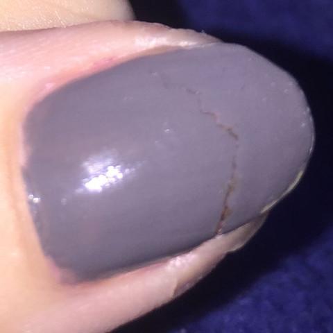 Das ist der eingerissene Nagel... - (Hand, Nägel, Finger)