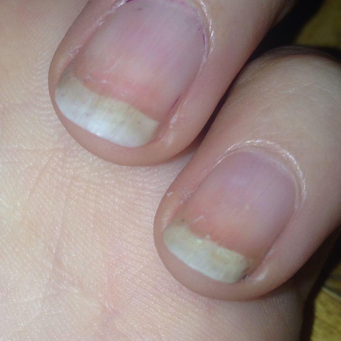 Nagel gelb und rissig (Nägel, häßlich, Verfärbung)