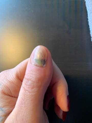 Nagel löst sich von nagelbett ab Hilfe?