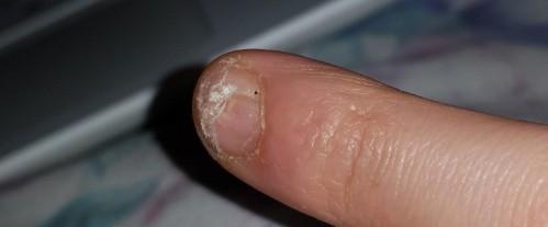 Hab wieder meine Nägel geschnitten aber man sieht ja wie krüppelig er ist.. - (Gesundheit und Medizin, Nägel, Autotür eingeklemmt)