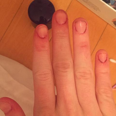 Schwarze haarfarbe von fingernagel entfernen