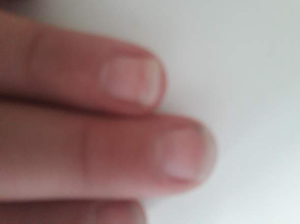 Nagelbett verlängert sich? (Fingernägel, fingernägel kauen)