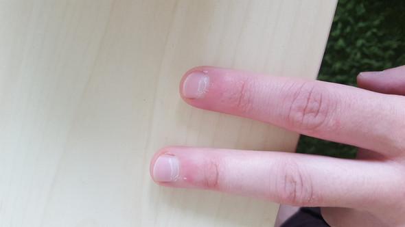 - (nagelpflege, nagelhaut)