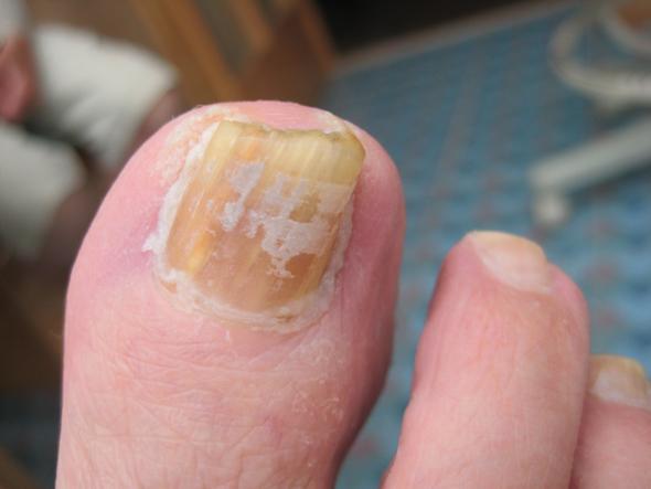 nagelpilz l bei nagelpilz hilft nicht fu pilz jenn cosmetic mittel gegen nagelpilz. Black Bedroom Furniture Sets. Home Design Ideas