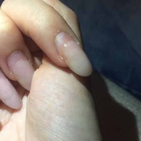 Nagelpilz Unter Den Gelnageln Nagel Infektion Nagelstudio