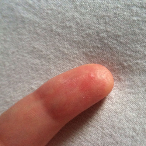 Am Finger - (Haut, nagelpilz)