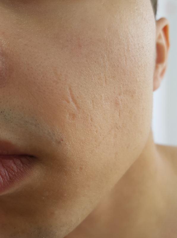Narben Von Pickel Im Gesicht