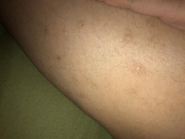 Narben an den Beinen vom Rassieren , was tun? (Beine)