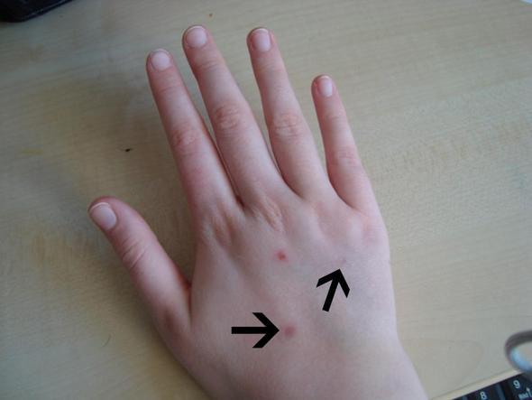 Hand - (Verletzung, Hand, Narben)
