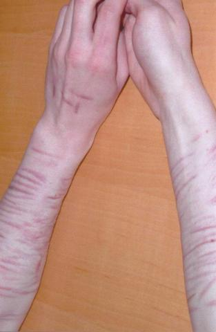 ergebnis von selbstverletzung - (Selbstverletzendes Verhalten, Narbenbehandlung)