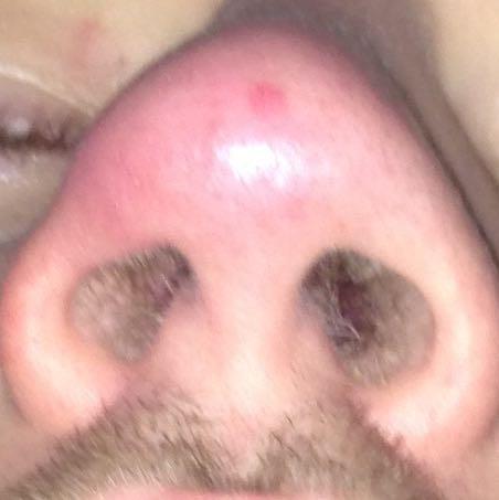 Bei nasenspitze berührung schmerzt Nase schmerzt