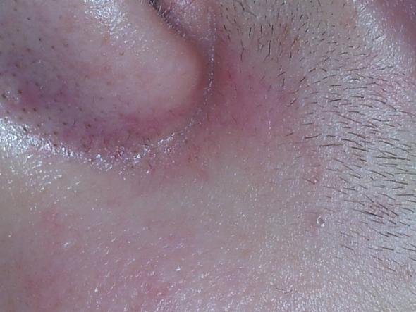 neben den nasenflügel habe ich rote flecken - (Nase, rote flecken)