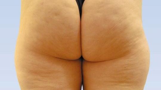 Bild 1 - (Beauty, Tipps, Cellulite)