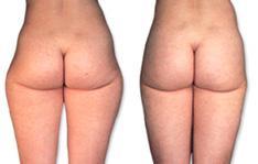 Bild 2 - (Beauty, Tipps, Cellulite)